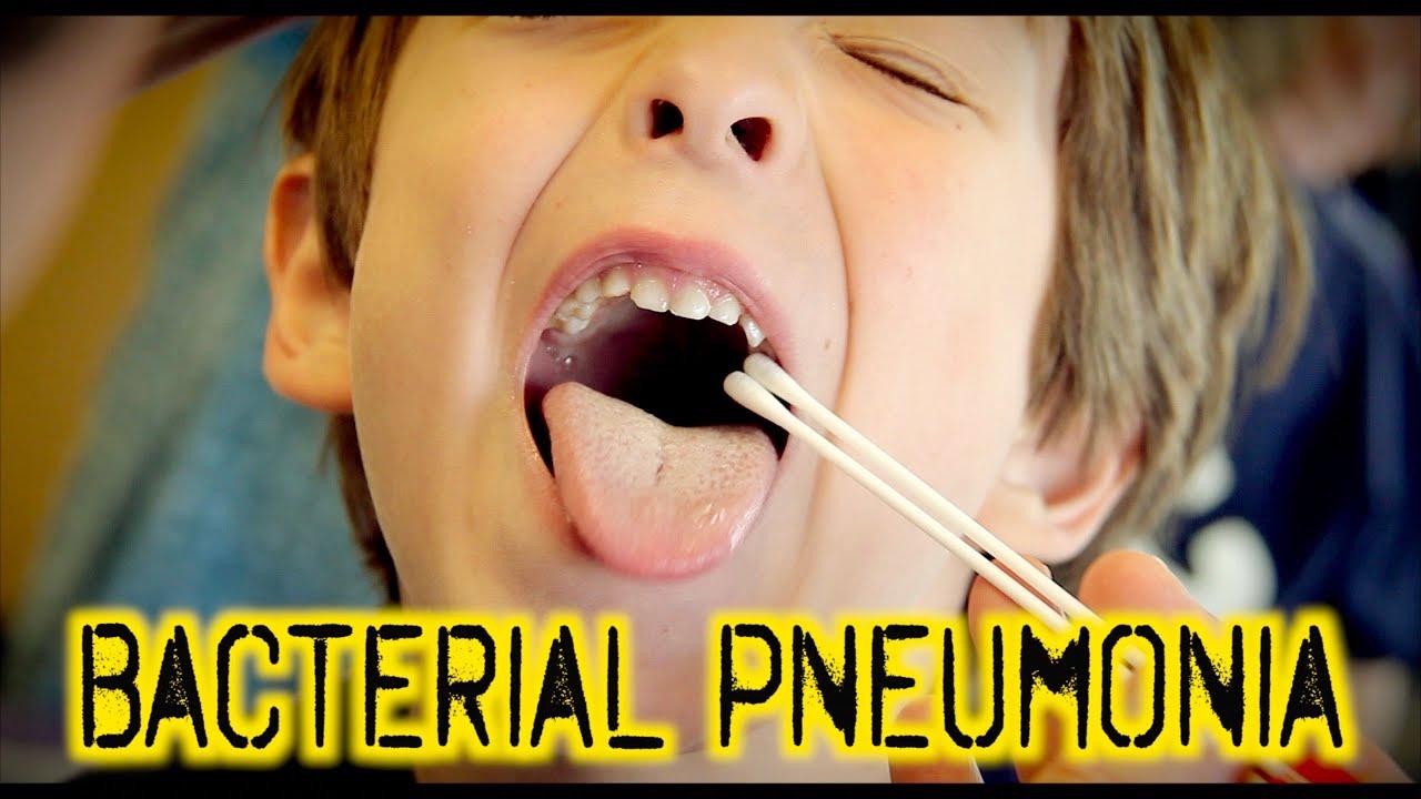 BACTERIAL PNEUMONIA: Diagnosis & Treatment | Dr. Paul - YouTube  BACTERIAL PNEUM...