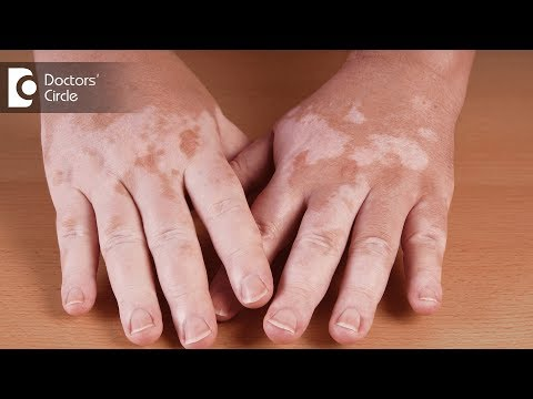 What are the causes of vitiligo? - Dr. Aruna Prasad