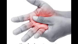 Arthritis Compression Glove
