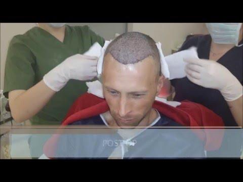 FUE Hair Transplant Growth Timeline - Health Travel International