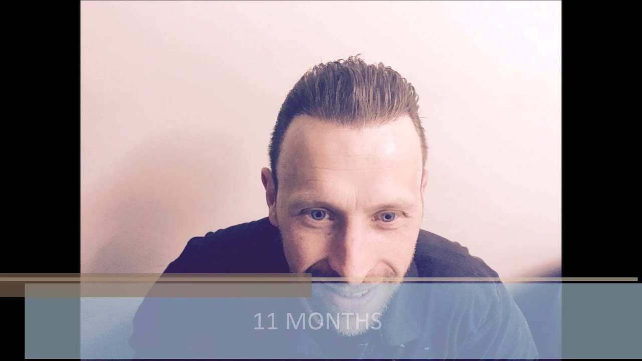 FUE Hair Transplant Growth Timeline - Health Travel International ...