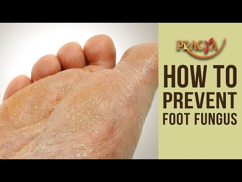 SKIN PROBLEM | How To Prevent Foot Fungus | Dr. Shehla Agarwal