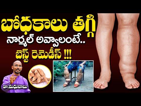 బోధకాలు తగ్గి నార్మల్ అవ్వాలంటే బెస్ట్ రెమెడీస్ | Dr. Madhu Babu | Health Trends |