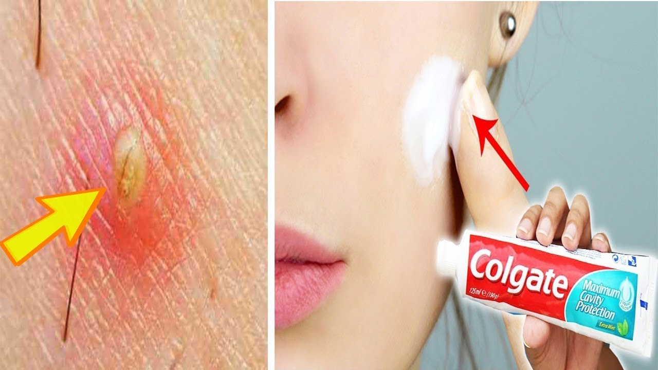 Remove Pimples In 1 Night of Applying Toothpaste | How To ...