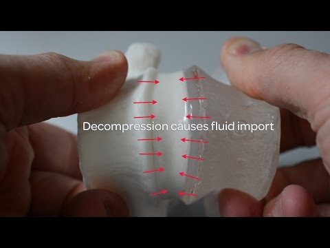 Decompression and Compression Spinal Hydraulics - A model to help explain