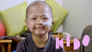 Iziyah - Kids with Disabilities