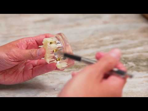 Parker West Dental - Hybrid Dentures and Implants