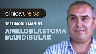 Video Manuel - Ameloblastoma mandibular download MP3, 3GP, MP4, WEBM, AVI, FLV Juni 2018