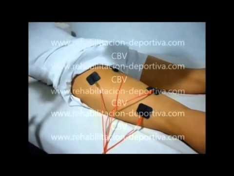 Postérieure de la cuisse à la déchirure 1ère étape thérapie et réhabilitation du sport (complet)