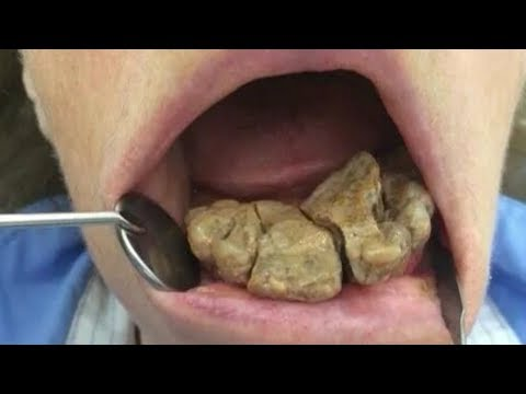 Worst Plaque, Tartar and Dental Buildup!  Best Removal, Plaque vs Tartar
