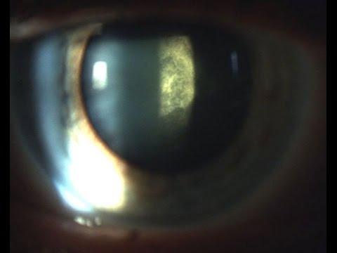 О внезапном возникновении задней субкапсулярной катаракты при сахарном диабете