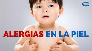Alergias en la piel por picaduras de insectos en los niños: Prúrigo