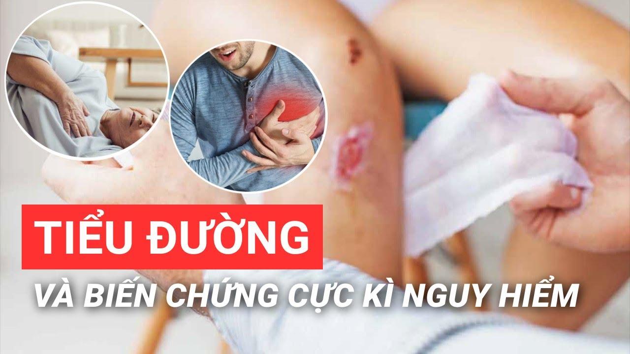 Tiểu đường biến chứng cực kỳ nguy hiểm| BS Võ Hà Băng Sương – Vinmec Phú Quốc
