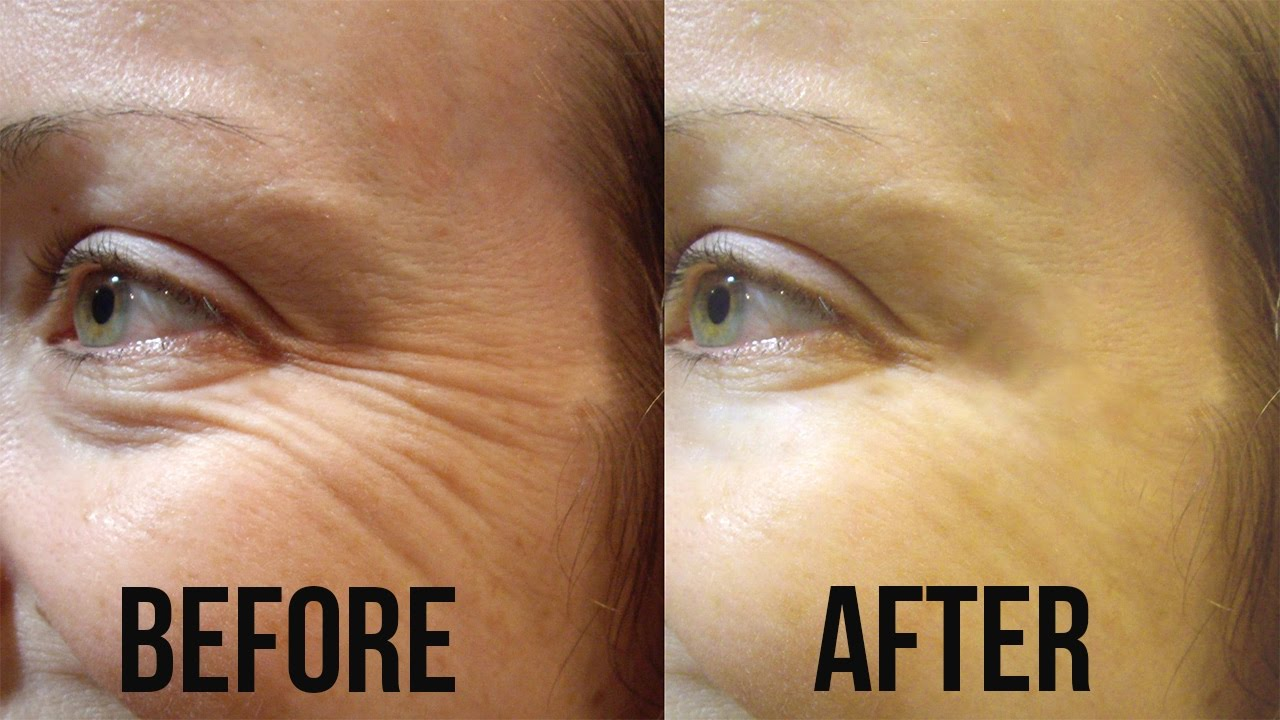 How to get rid of age spots 60