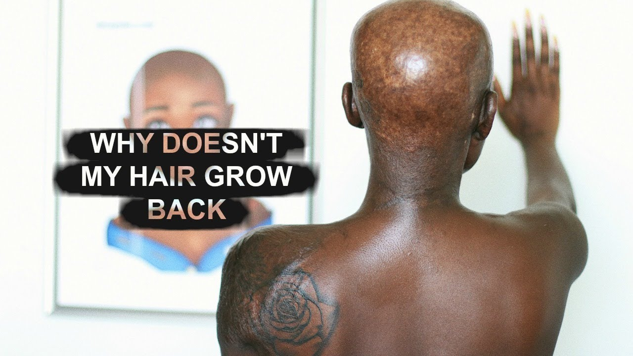 WHY MY HAIR WOULDN'T GROW OUT AGAIN | Shalom Blac