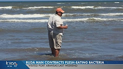 Buda man contracts flesh-eating bacteria during Port Aransas trip