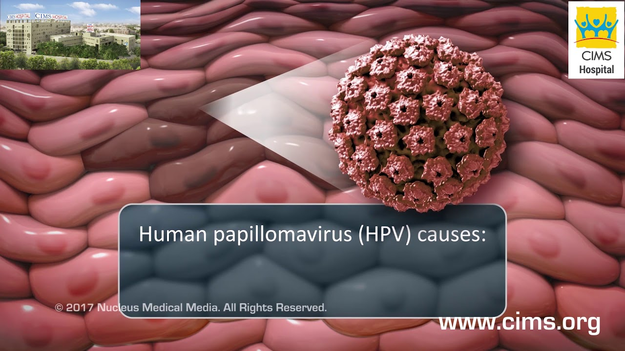 Pap and HPV Testing - CIMS Hospital