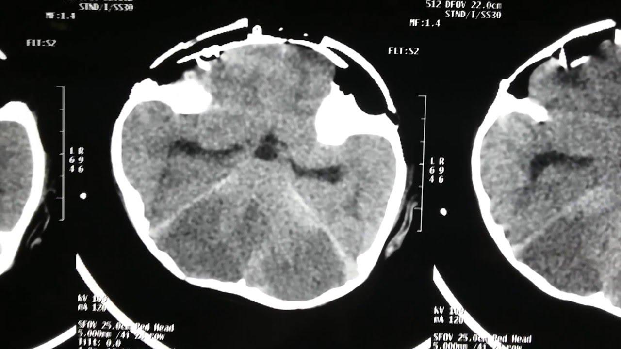 cerebral edema on ct brain
