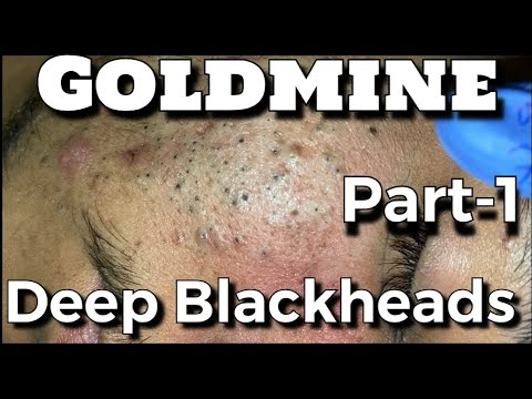 Most Satisfying Video Face Skin Care with Calm Music Ep67 from YouTube · Duration:  6 minutes