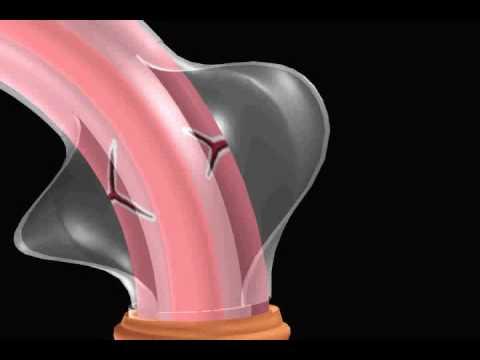 cirurgia penis membrana - torto jpg 1500x1000