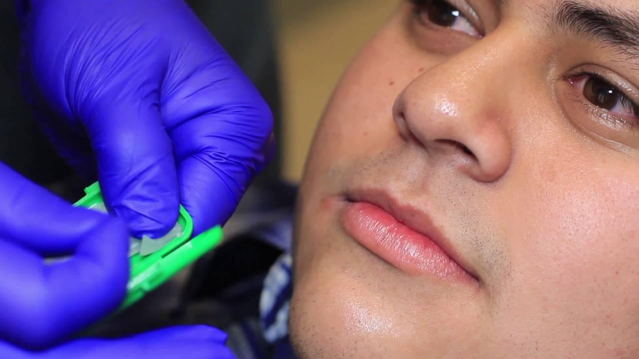 Spanish How To Use Wax Braces Invisalign In Okc Sky Ortho