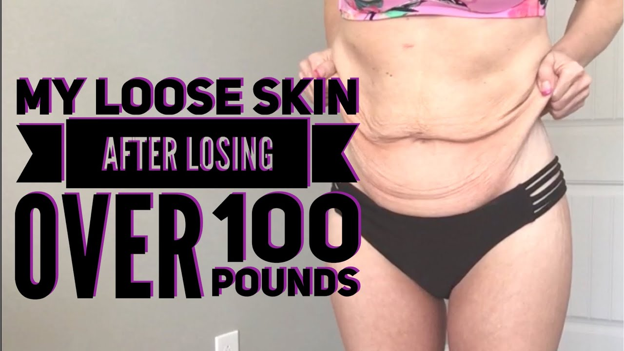 1e702dd655e MY LOOSE SKIN AFTER LOSING OVER 100 POUNDS WITH WEIGHT LOSS SURGERY ll BODY  SHOT ll GASTRIC BYPASS