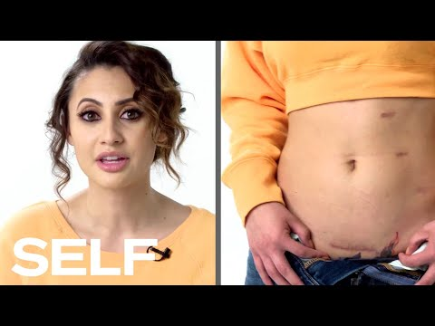 Francia Raisa Explains How She Became Selena Gomezs Kidney Donor  Body Stories  SELF