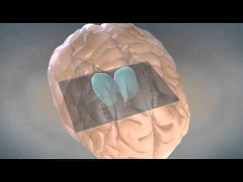 The Sensory Gating Mechanism - Sleep disorders in pain patients