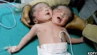 Rare Set Of Conjoined Twins Born In India