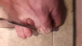 Ingrown toenail removal