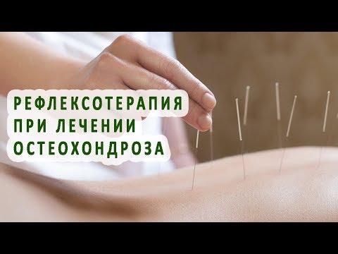 Рефлексотерапия при лечении остеохондроза