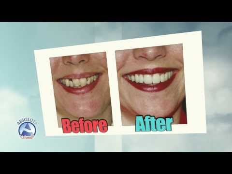 """veneers,-before-and-after-results-by-""""absolute-smile"""".-amazing-results-!"""