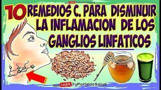10 Remedios para Disminuir Inflamación de Ganglios Linfático…