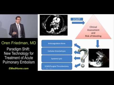 Paradigm Shift: New Technology for Treatment of Acute Pulmonary Embolism, Lecture 2