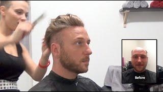 Hair Replacement FITTING VIDEO (Dan) – Hair loss, Baldness, Hair Wigs, Hair Toupees, Hair pieces