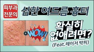 심한 여드름 흉터 확실히 없애는법?(feat.레이저 박…