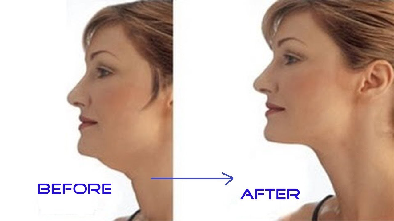 Image of: How To Get Rid Of Neck Fat Simple And Quick Get Rid Of Neck Fat Fast Youtube How To Get Rid Of Neck Fat Simple And Quick Get Rid Of Neck Fat