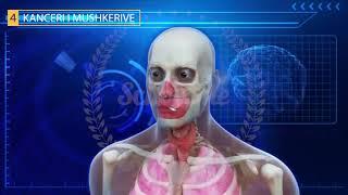 Kujdesi Dhe Sëmundjet E Organeve Të Frymëmarrjes