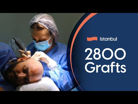 Hair transplant Turkey Before and After - German Estetica