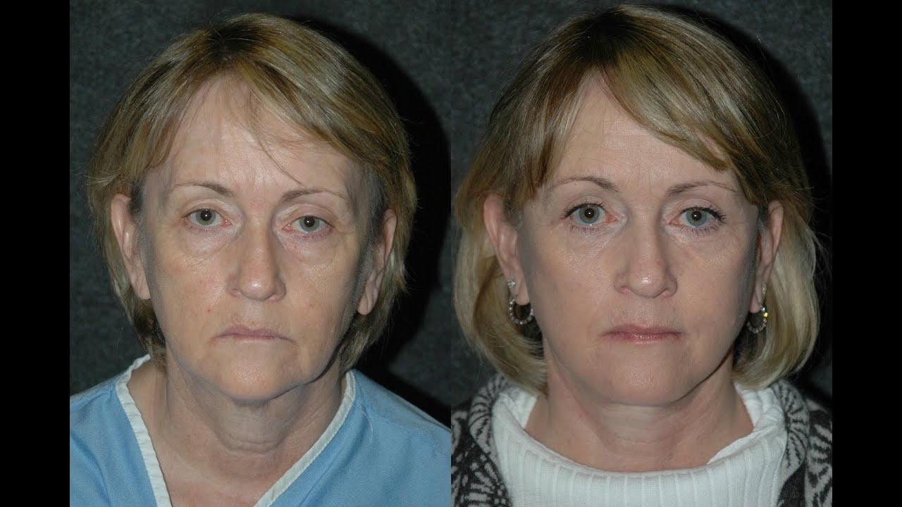 life without face lifts Facelift without surgery, know your options women can get that look by using a facelift without with a few non-life threatening side effects.