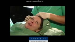 Cosmedics Thread Silhouette Lift Cosmetic Surgery Show episode 2 Thumbnail