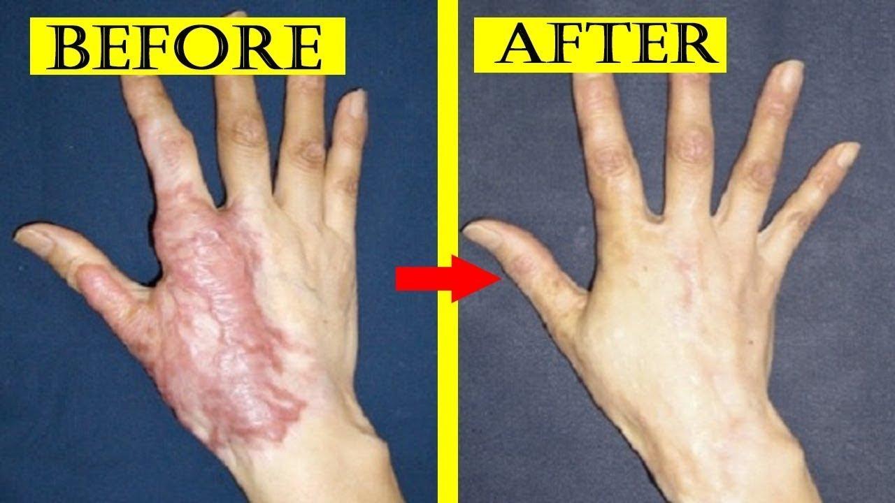 161cb6a4164b7 علاج اثار الحبوب واثار الجروح والحروق والندبات والخدوش والبقع الداكنه