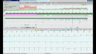 Общие настройки анализа по методике Холтер ЭКГ.WMV(, 2012-02-13T10:09:50.000Z)