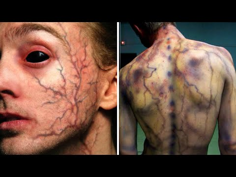 8 People Who Gained REAL SUPERPOWERS After An Accident!