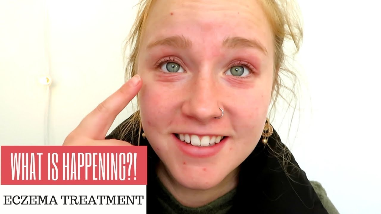 What Happened To My Eyes Eczema Treatment 2018