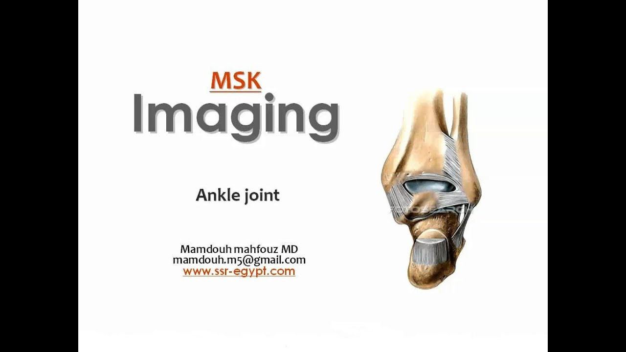 Imaging of the Ankle joint -DRE 5 - Prof. Dr. Mamdouh Mahfouz - YouTube