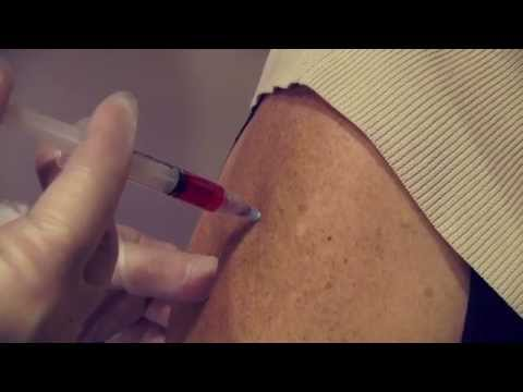B12 In The Arm