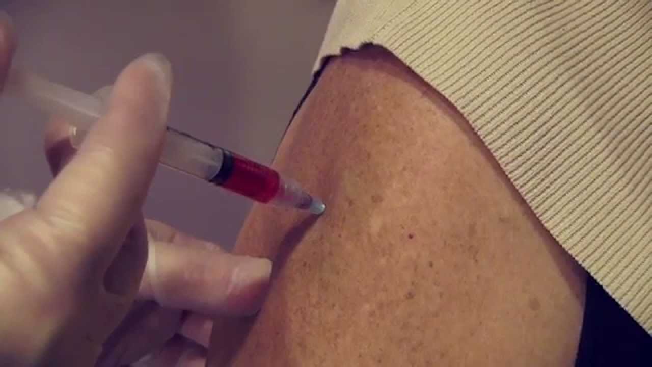 B12 Shot in the Arm - Slow