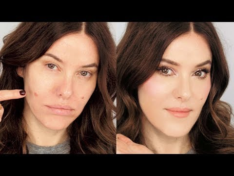 3 Tactics for Dealing with a Large Swollen Blemish