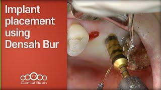 Implant placement using Densah Bur [#Dentalbean]
